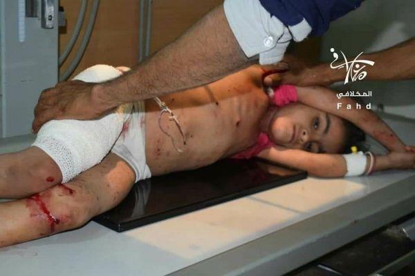 استشهاد مدني وإصابة أطفال بقصف حوثي استهدف منطقة الحميراء شرق تعز