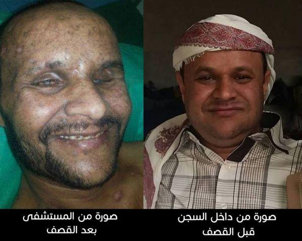 «أحمد».. مختطف لدى الحوثيين أصيب في قصف معسكر الشرطة العسكرية بصنعاء وترفض الميليشيا الافراج عنه