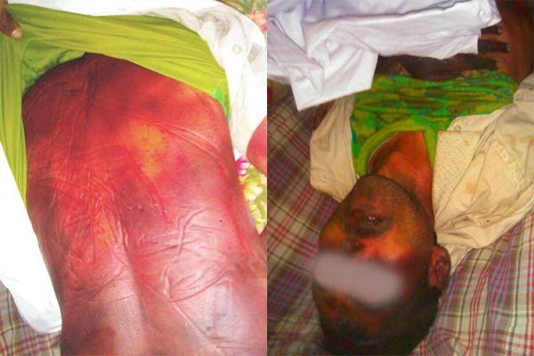 حقوق الإنسان: مليشيات الحوثي تسببت في وفاة 125 مختطف تحت التعذيب