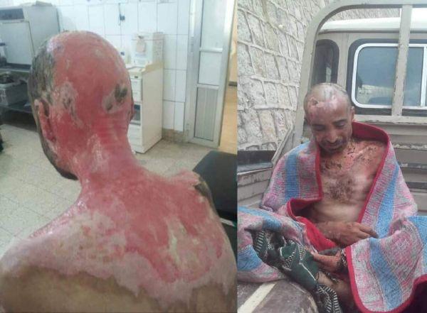 مأساة تعذيب المختطفين.. هل تزيد اليمنيين إصراراً لإنهاء إرهاب الحوثيين؟