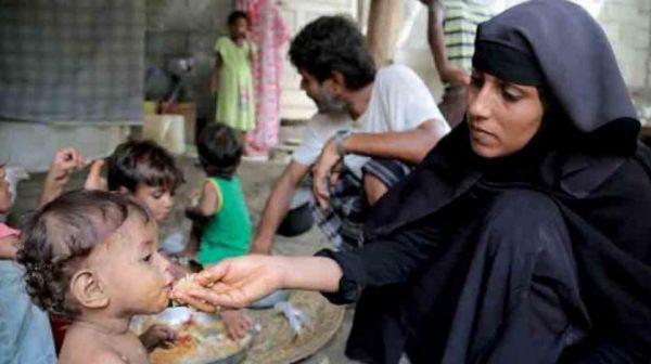 ناشط سياسي: الحوثيون يعملون على إستثمار الأزمة الإنسانية في اليمن
