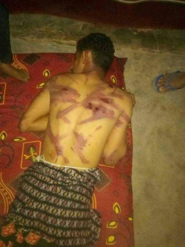 """الحوثيون يختطفون شابا في """"الحديدة"""" ويعذبونه بصورة وحشية (اسم وصورة)"""
