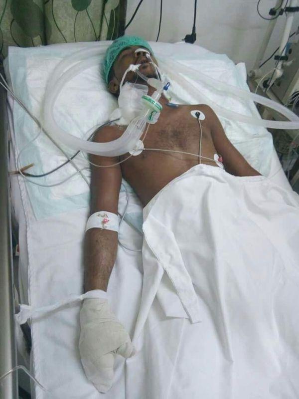 الحديدة: مسلّح حوثي يطلق الرصاص على شاب رفض منحه كمية من الثلج
