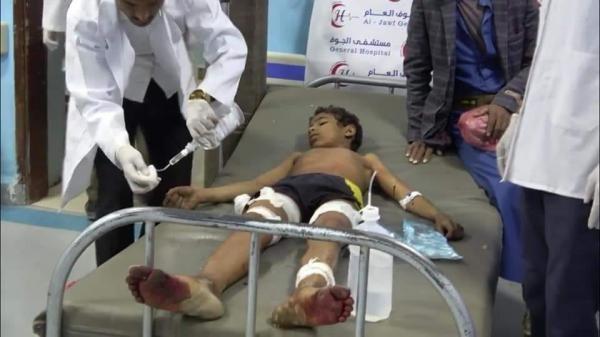 إصابة طفل جراء قذيفة حوثية سقطت على منزلهم غرب الجوف