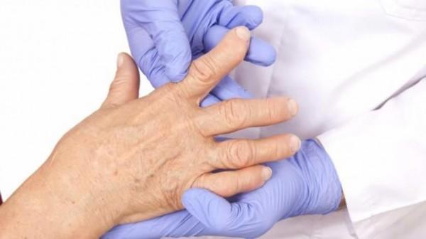 الإقلاع عن التدخين يحد من خطر الإصابة بالتهاب المفاصل الروماتويدي