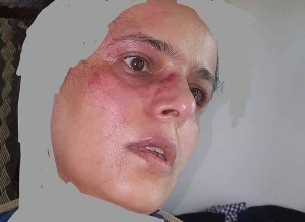 """مليشيات الحوثي تعتدي على ناشطة بصنعاء بسبب منشوراتها على """"فيسبوك"""""""