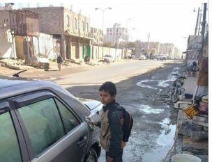 لم يستطع دفع ألف ريال.. طفل يتعرض للضرب والتعنيف من إدارة مدرسته في صنعاء