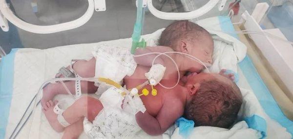في حالة نادرة.. ولادة توأمان ملتصقان في صنعاء بقلب وأحد ورئتان