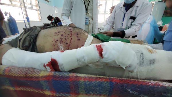 إستشهاد وإصابة 7 مدنيين بصاروخ بالستي أطلقته المليشيا الحوثية على مدينة مأرب