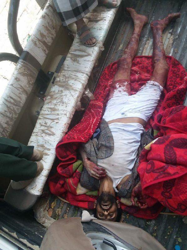 مقتل مسلح حوثي على يد امرأة مهمشة بصنعاء.. حادثتا قتل خلال أسبوع