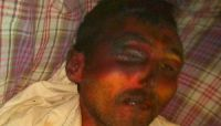 رابطة الأمهات تدين قتل المختطف«التويتي»حرقاً بالماء الحار