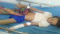 سقوط شهداء وجرحى مدنيين في مجزرة ارتكبتها مليشيات الحوثي غرب مريس