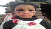 """ضرب وحشي وتعذيب بالنار.. يوميات من الجحيم تعايشها الطفلة """"شيماء"""" مع والدها الحوثي وزوجته"""