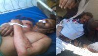 لرفضهم دفع جباية (الخُمس).. مقتل وإصابة 3 مواطنين برصاص مشرف حوثي في ذمار