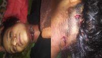 في جريمة صادمة ووحشية.. مشرف حوثي يقتل زوجته ويمثّل بجثتها غربي ذمار